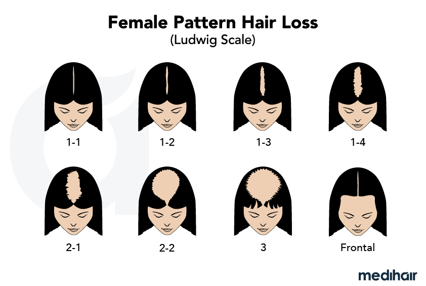 Typical female pattern hair loss: The ludwig scale.