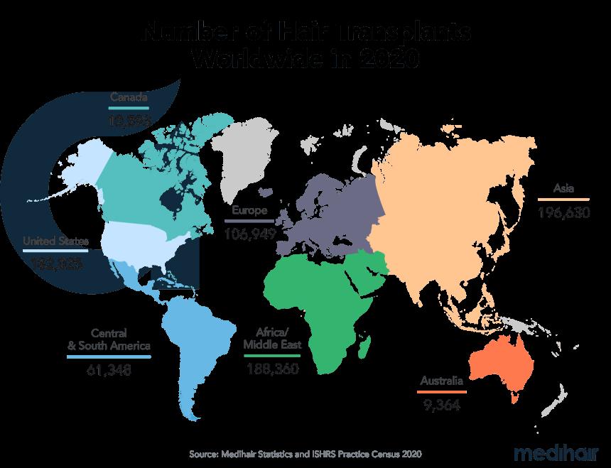 Number of hair transplants worldwide